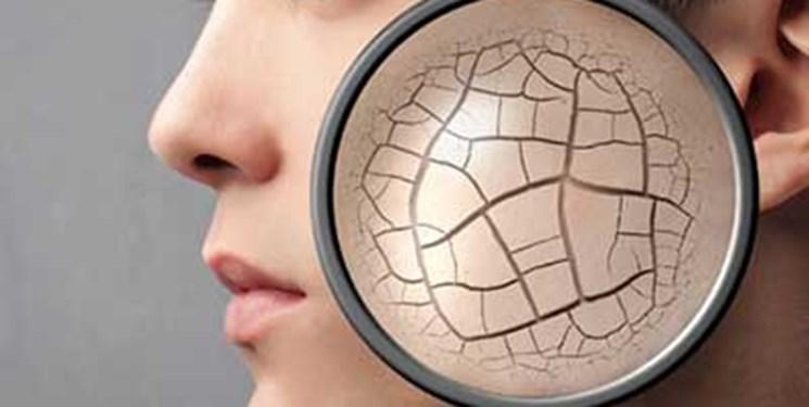ارائه ژل ایرانی برای بهبود چین و چروک پوست با همکاری صنعت و دانشگاه