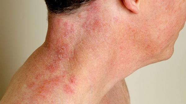 درمان بیماری زونا با روش های طبیعی و دارویی